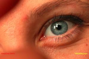 USA: emocje i spory wokół dostępu pacjentów do tańszego leczenia AMD