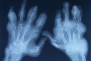 Wyróżniono rozpuszczalne bioimplanty regenerujące kości