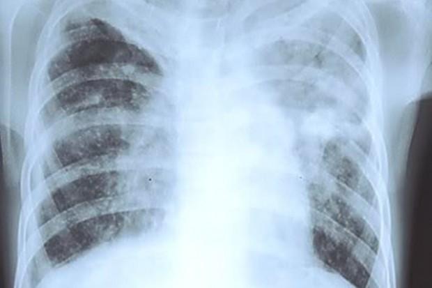 Problemem w walce z gruźlicą jest wielolekooporność