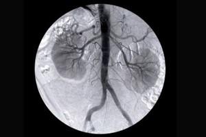 Nefrolodzy: dbając o nerki, chronimy serce