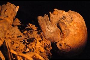 Najstarszy znany przypadek choroby wieńcowej u mumii egipskiej