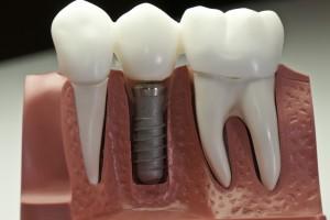 SSRI utrudniają osteointegrację implantów zębowych