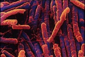 Zabójcze bakterie groźniejsze niż nowotwory