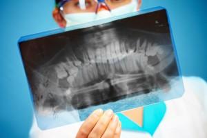 FDA ostrzega przed substytutami przeszczepów kości u młodych