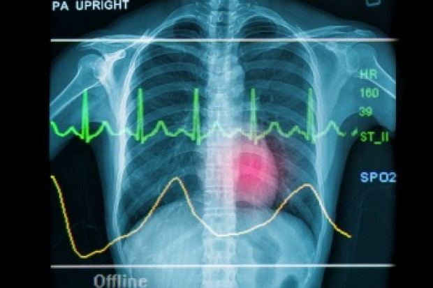 FDA: tak dla iwabradyny na przewlekłą niewydolność serca