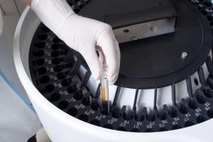 Trzy firmy w wyścigu o pierwszeństwo z biopodobnym rituximabem