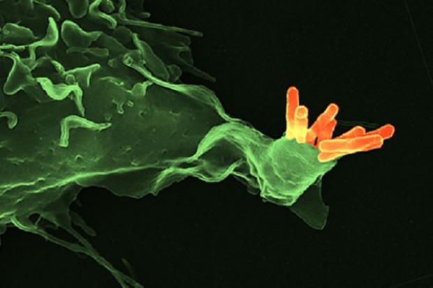 Nowy schemat leczenia gruźlicy: tańszy i krótszy