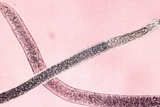 Badania: opracowano lek na pasożyta ludzkiej włosogłówki