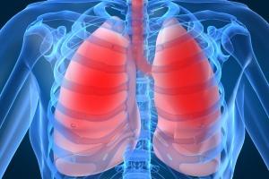 Wyniki badania leku antyfibrotycznego w IPF
