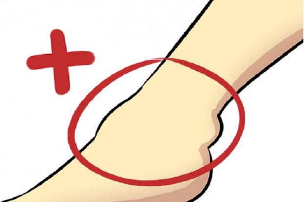 Brzeziny: ortopedzi leczą ubytki kości chrząstką w spreju