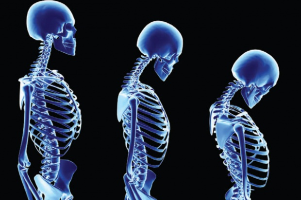 Przesiewowa tomografia płuc może wykryć osteoporozę
