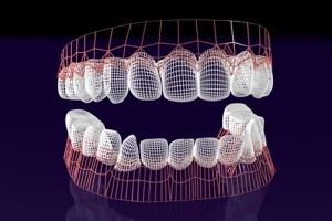 Nie ma dowodów, że nici dentystyczne pomagają