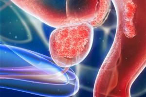 Wczesna postać raka prostaty nie wymaga agresywnego leczenia