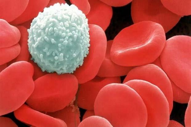 Wzrosła zachorowalność na nowotwory krwi. Problem pogłębia brak refundacji