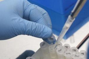USA: zaginął naukowiec, który prowadził badania nad wirusem Zika i Ebola
