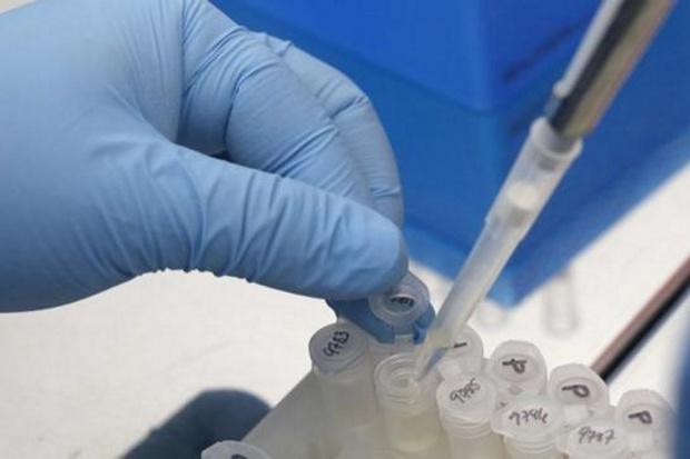 Wirus zika może powodować ciężkie schorzenie neurologiczne
