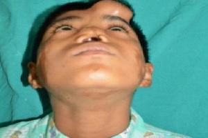 Nos wyhodowany na czole