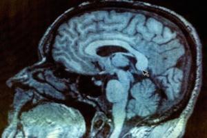 Ultradźwięki mogą budzić ze śpiączki?