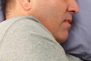 Bezdech senny zwiększa ryzyko udaru mózgu
