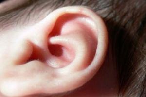 Niedobór żelaza czynnikiem ryzyka utraty słuchu