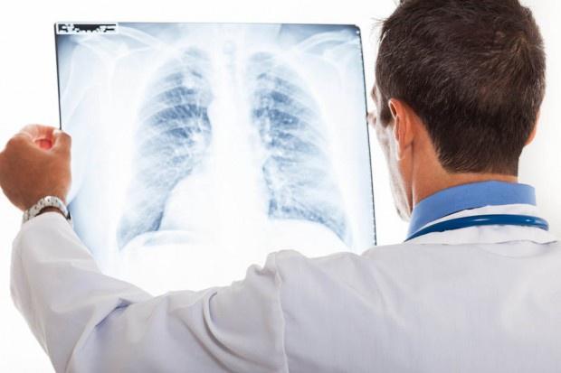 Eksperci: rak płuca wymaga szybkich i zdecydowanych działań