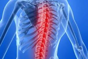 Zażywanie aspiryny na ból kręgosłupa jest bezcelowe?