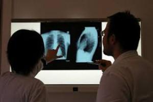 MZ: projekt w sprawie utworzenia Krajowego Rejestru Raka Płuca