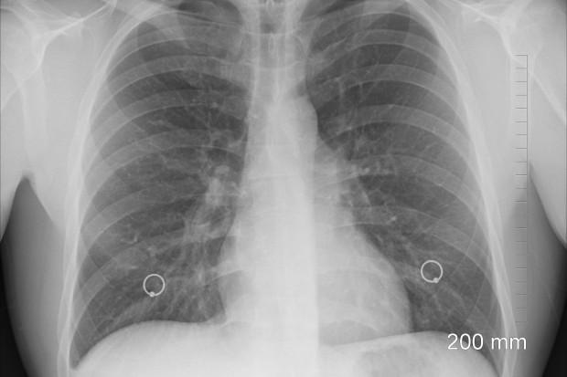 Ustnik z drukarki 3D wykryje nowotwory układu oddechowego