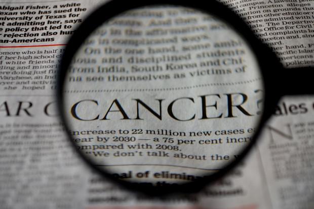MZ: elektrochemioterapia jest obiecującą techniką leczenia tych nowotworów