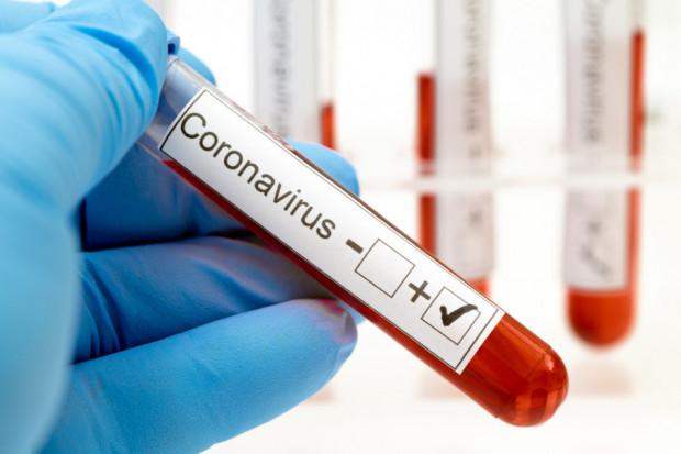 COVID-19: 18 nowych przypadków, łącznie jest ich 305