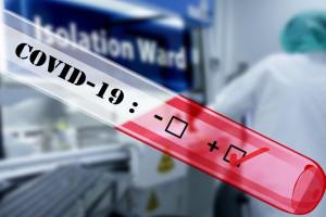 Firma farmaceutyczna przekazała 45 tys. testów w kierunku SARS-CoV-2