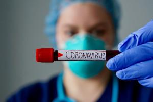 Francja: refundacją zostaną objęte testy serologiczne