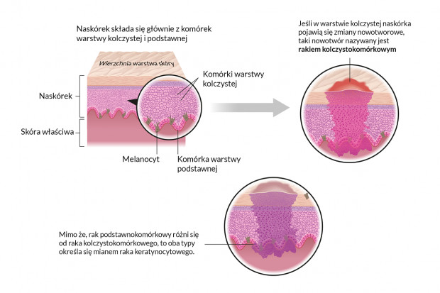 Rak kolczystokomórkowy: drugi najczęściej występujący rak skóry