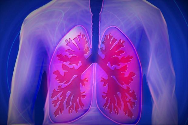 Sztuczna inteligencja pomaga identyfikować COVID-19 w płucach