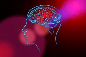 Eksperci: niepokojąco wzrasta liczba udarów mózgu wśród osób młodych