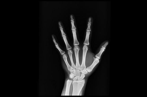 Badanie: agrina powoduje regenerację uszkodzonych kości i chrząstek